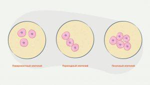 Почечный эпителий в моче