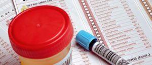 Анализ мочи на бактериологическое исследование