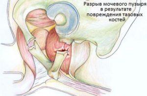 Травма мочевого пузыря