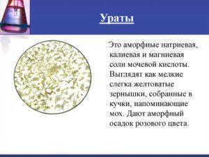 Соли мочевой кислоты в моче