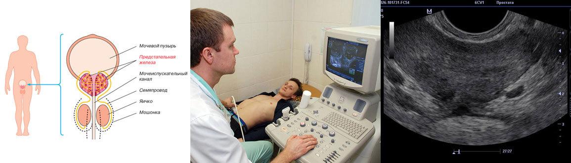 Скрининг на простатит отзывы лечение простатита в израиле