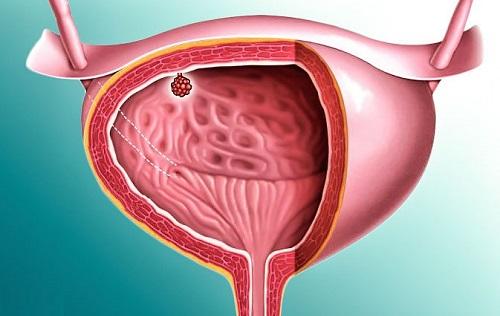 Рези в мочевом пузыре у женщин причины 2
