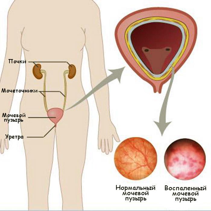 Рези в мочевом пузыре у женщин причины 24